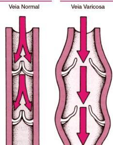 O diagrama mostra o que ocorre nas veias para formar as varizes