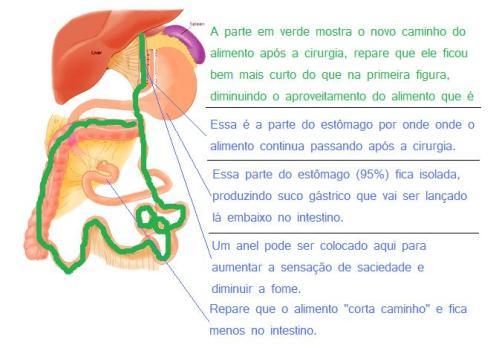 Esquema da cirurgia de Fobi-Capella umas das mais realizadas contra obesidade.